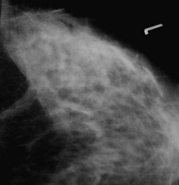 Screening mammogram depicts malignant ductal-type