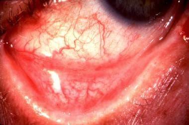 Symblepharon secondary to epidemic keratoconjuncti