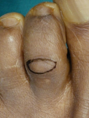 Claw toe. Elliptical outline of the skin incision.