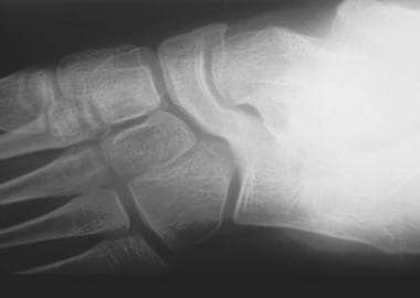 Plain radiograph (Slomann view) showing typical ap