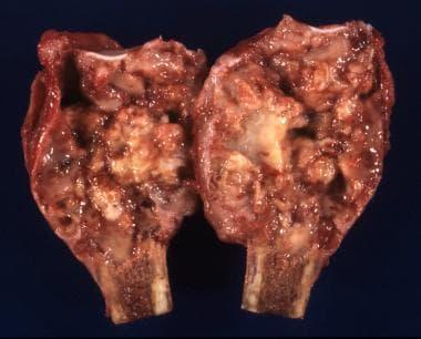 Gross specimen of a giant cell tumor that fills th