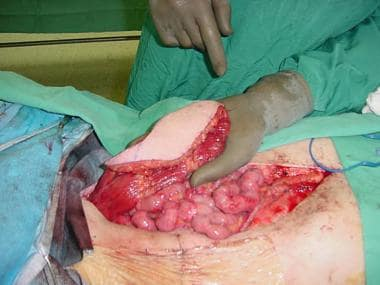 Perineal reconstruction. This 70-year-old man with