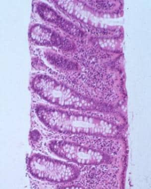 Lymphocytic colitis (LC) showing marked chronic in