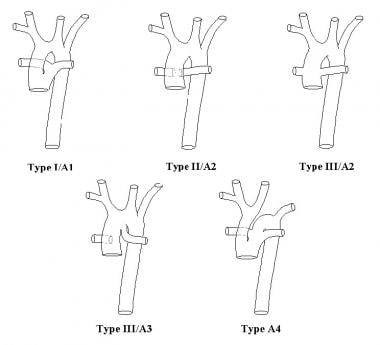 Anatomic subtypes of truncus arteriosus (TA), acco