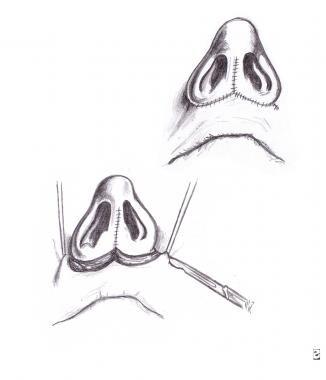 Centripetal rotation and fixation across septal po