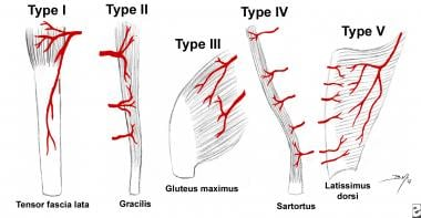 Patterns of muscle flap vascular anatomy. Type I -