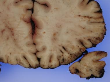 Cross section of brain with cerebral contusions on
