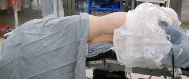 The patient is placed laterally and padded with th