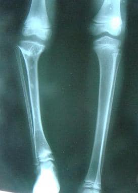 Injury to the proximal tibial epiphysis causing a
