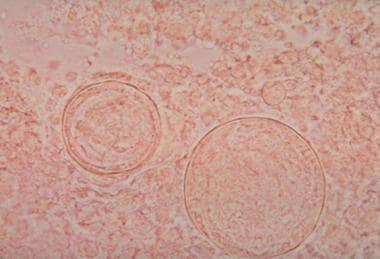 Coccidioides immitis spherule containing daughter