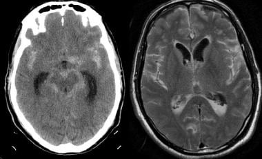 Noncontrast CT scan was performed emergently in th