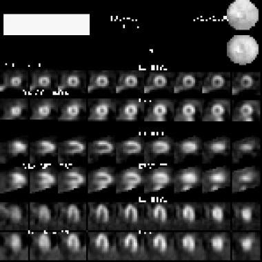 Compared with radionuclide images of blood deliver