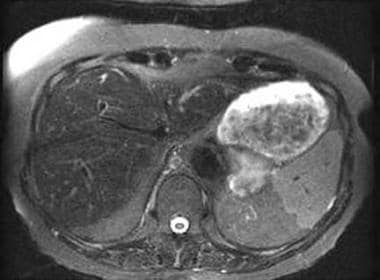 Axial fat-saturated T2-weighted fast spin-echo ima