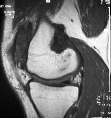 Pigmented villonodular synovitis of the knee. Sagi