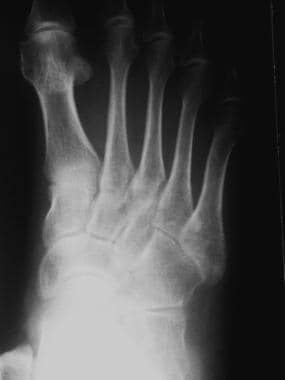 Fractured metatarsals. Transverse fracture at the