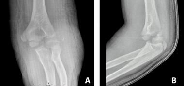 Milch II lateral condyle fracture with elbow dislo