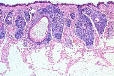 Well-circumscribed, superficial lesion composed of