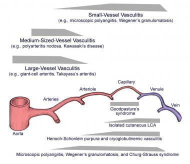 Preferred sites of vascular involvement by selecte