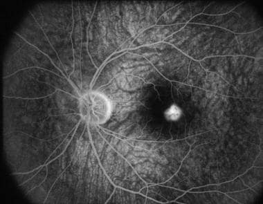 Fluorescein angiography in the early recirculation