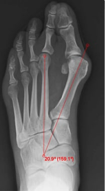 Intermetatarsal angle (normal < 9°).