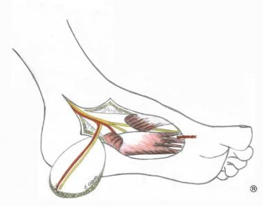 Medialis pedis flap described by Masquelet (1990).