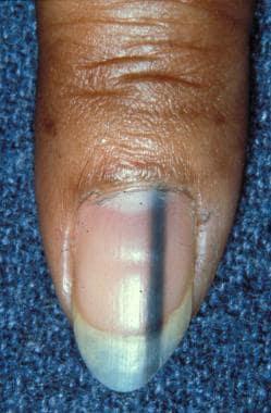 Longitudinal melanonychia secondary to a nevus.