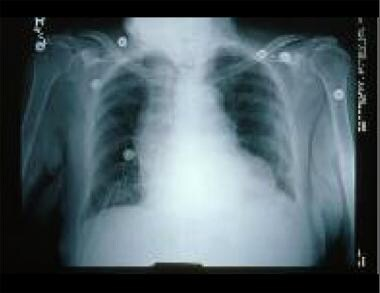 This chest radiograph shows an enlarged cardiac si