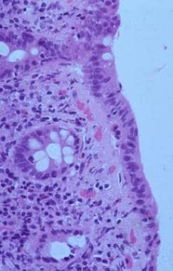 Collagenous colitis (CC) showing similar inflammat