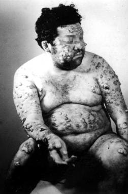 Diffuse (disseminated) cutaneous leishmaniasis. Co