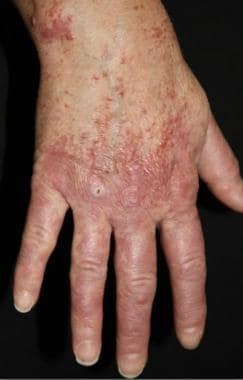 Erythematous to brown papules overlying the right