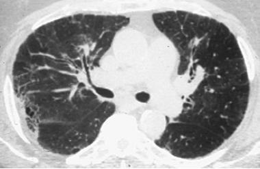 The chronic phase of hypersensitivity pneumonitis