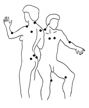 Tender points in fibromyalgia.