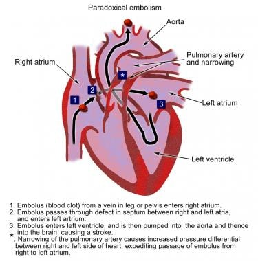 paradoxical embolism: background, pathophysiology, etiology, Skeleton