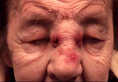 A nasal tumor that has eroded through the nasal bo