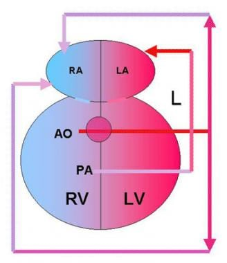Double outlet right ventricle (DORV) with transpos