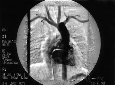 This right ventricular angiogram shows a patient w