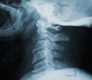 Teardrop fracture.