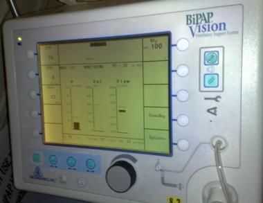 Bilevel positive airway pressure (BiPAP) vision ve