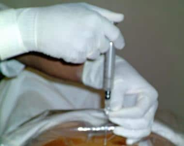 Loss of resistance technique using glass syringe.