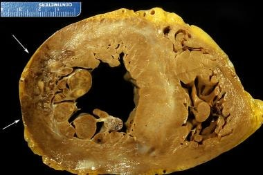 Healing myocardial infarction, lateral left ventri