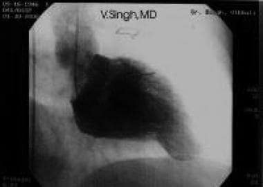 Left ventricular (LV) cineangiogram obtained durin