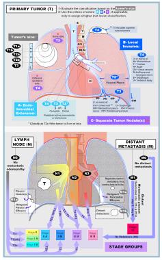 Two illustrations summarizing the 2009 tumor, node