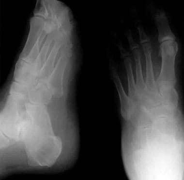 Calcaneus, fractures. Essex Lopresti depression-ty