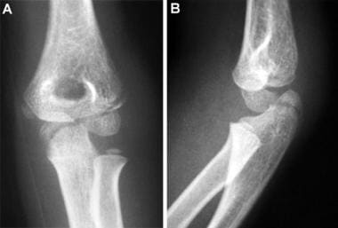 Lateral condyle and olecranon fractures. Anteropos