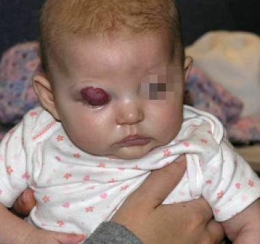 Periorbital infantile hemangioma that is compromis