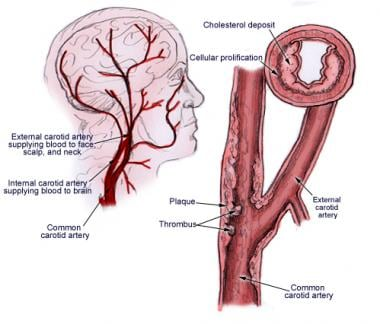 Underlying etiology of carotid artery stenosis is