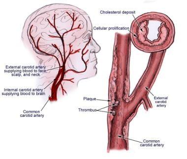 Underlying etiology of carotid artery stenosis is
