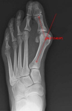 Hallux valgus angle (normal < 15°).