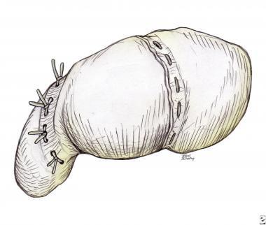 Drawing showing final repair of scapholunate inter