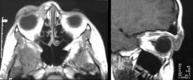 MRI of eyelid lymphatic vascular malformation.